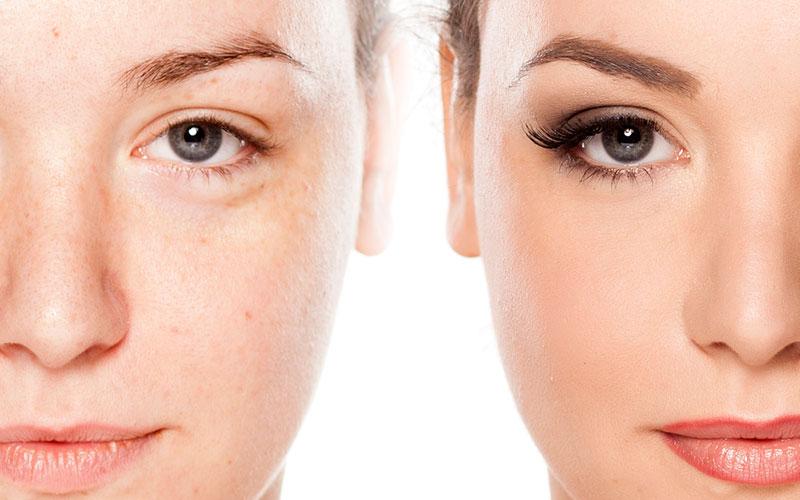 Healthy skin comparison